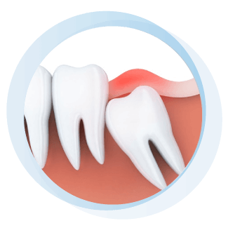 Wisdom Teeth Extraction near Frisco TX