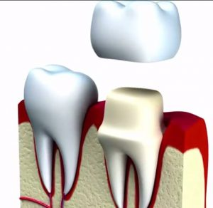 Dental crowns Frisco TX