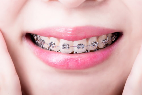 Metal Braces Frisco TX