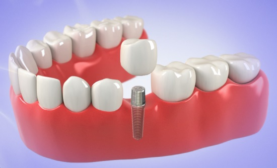 permanent dental implants near me